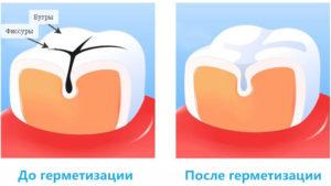 Герметизация фиссур